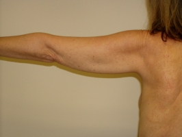 arm-liposuction-before-maryland