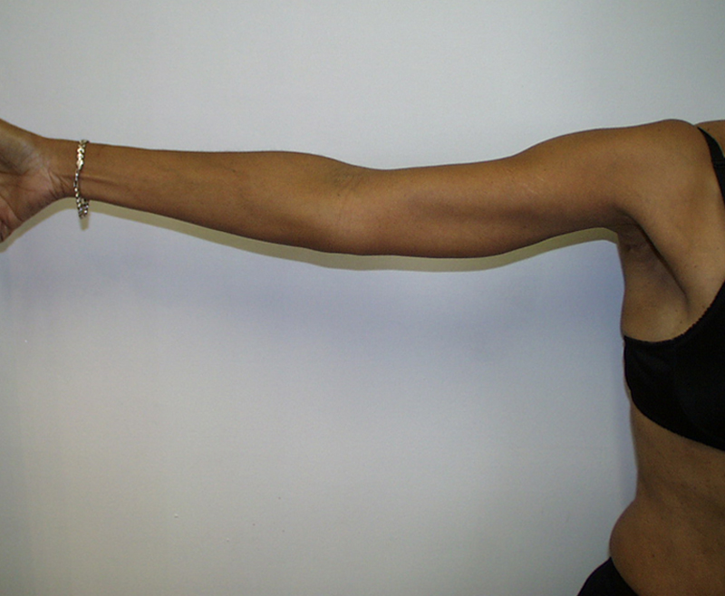 Scars From Upper Arm Lifts : Upper arm lift