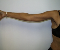 upper-arm-lift-after-maryland