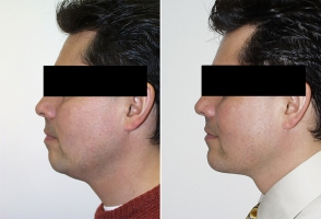 chin-implant-washington-dc