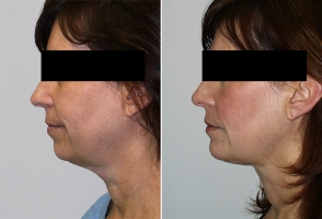 chin-augmentation-maryland