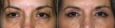blepharoplasty-maryland