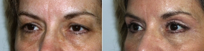 blepharoplasty-washington-dc