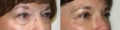 lower-eyelid-lift-maryland