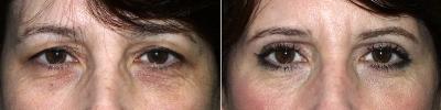 eyelid-lift-maryland