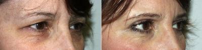 eyelid-lift-washington-dc