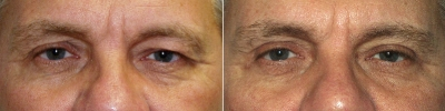 lower-eyelid-lift-washington-dc