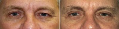 lower-eyelid-lift-washington-dc