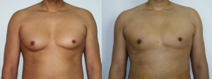 male-breast-reduction-surgery-chevy-chase