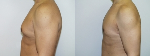 male-breast-reduction-surgery-washington-dc