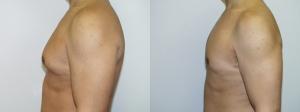 male-breast-reduction-surgery-washington-dc