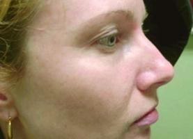 intense-pulsed-light-treatment-maryland