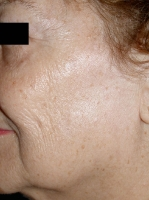 facial-pigmentation-maryland