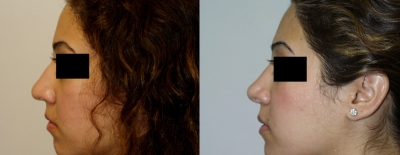 rhinoplasty-washington-dc