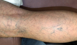 spider-veins-before-chevy-chase