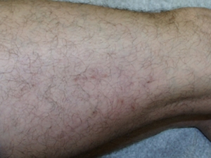 schlerotherapy-treatment-chevy-chase-maryland