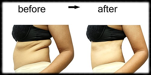 liposuction-chevy-chase-maryland