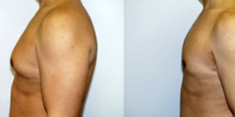 male-breast-reduction-chevy-chase-maryland
