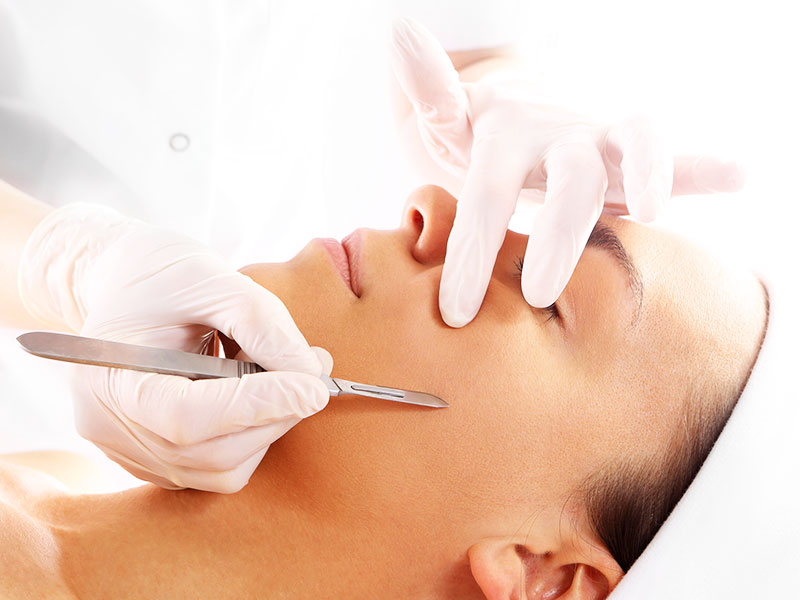 dermaplaning-chevy-chase