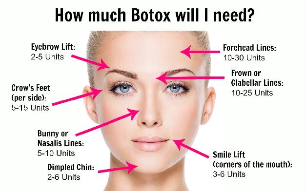 brilliant-distinctions-program-botox
