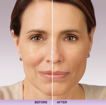 juvederm-facial-filler-maryland