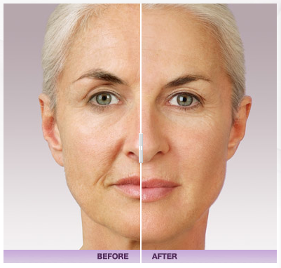 juvederm-facial-filler-washington-dc
