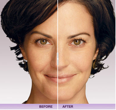juvederm-facial-filler-chevy-chase