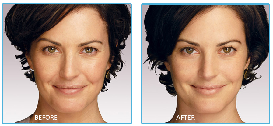 Radiesse Chevy Chase | Cosmetic Filler Maryland | Sheilah A