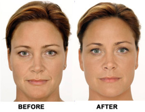 voluma-before-and-after