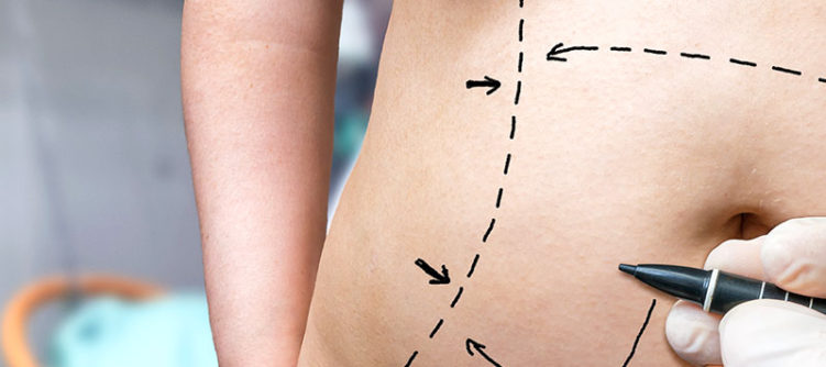 liposuction-chevy-chase-blog