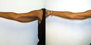 upper-arm-lift