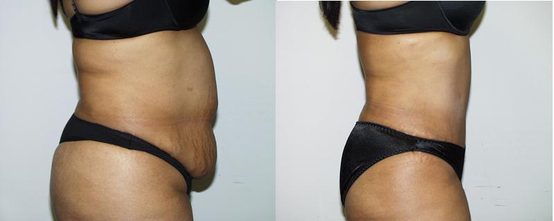 abdominoplasty-blog-chevy-chase