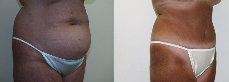abdominoplasty-blog-maryland