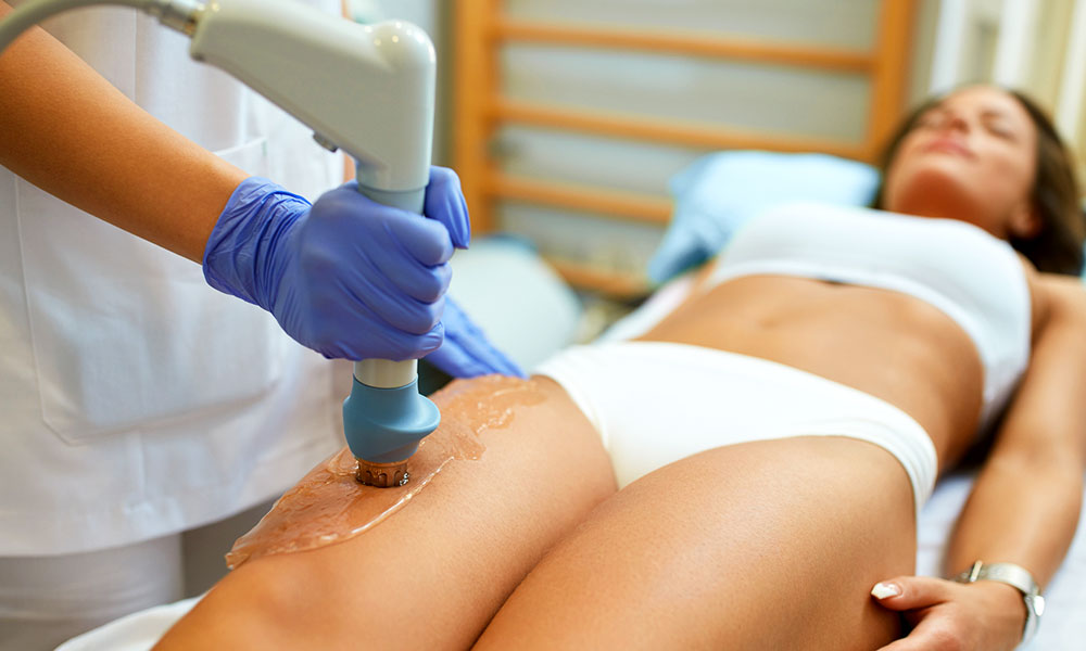 laser-hair-removal-maryland