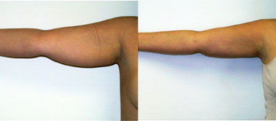 arm-liposuction-maryland