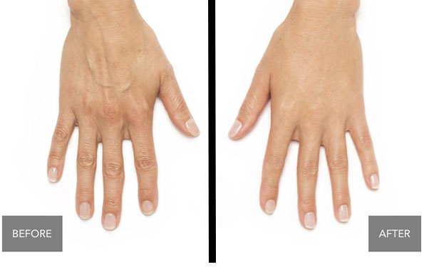 hand-rejuvenation-chevy-chase