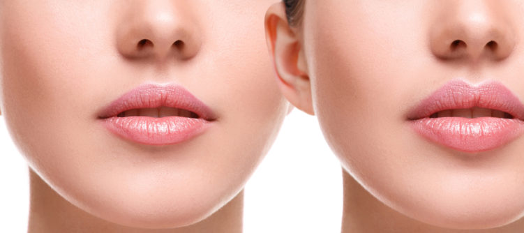 Lip Injections? How to Tell | Sheilah A  Lynch, MD - Board