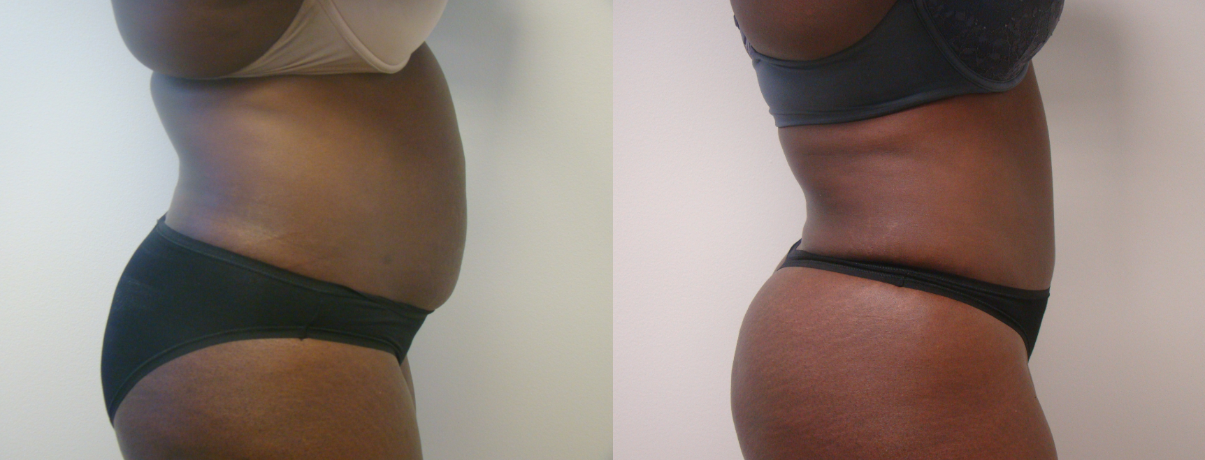 Tummy Tuck Results Chevy Chase