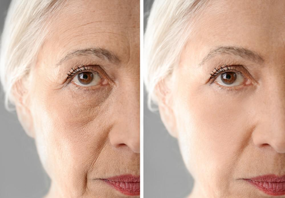 Under Eye Cosmetic Filler Injections