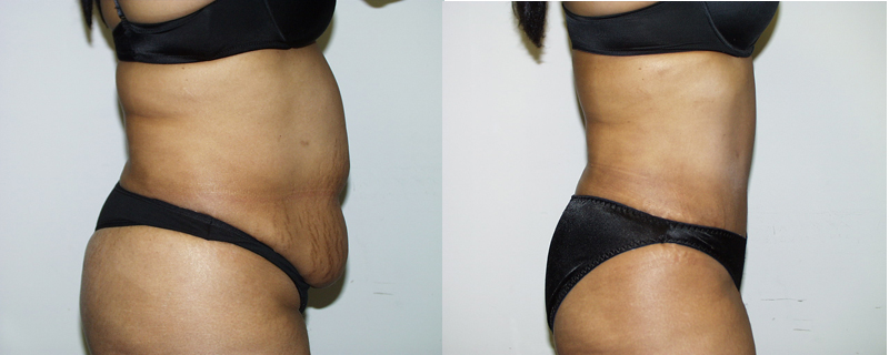 abdominoplasty-chevy-chase